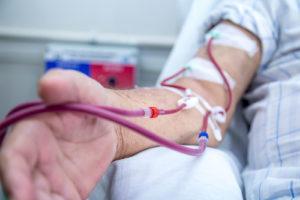 ¿Qué es el acceso vascular para hemodiálisis?